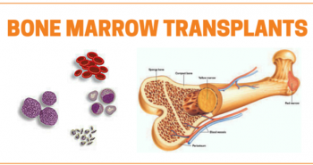 The Various Steps Of Bone Marrow Transplantation